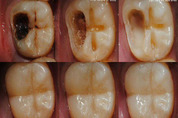 pokvaren-zub