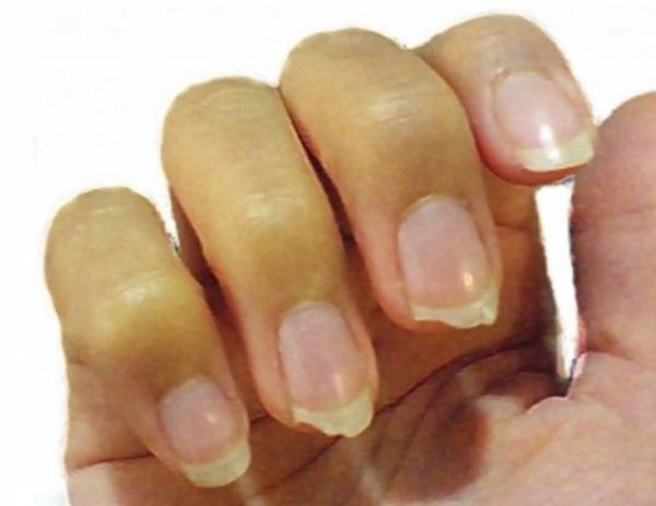 nokti2