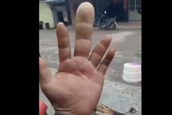 prst1